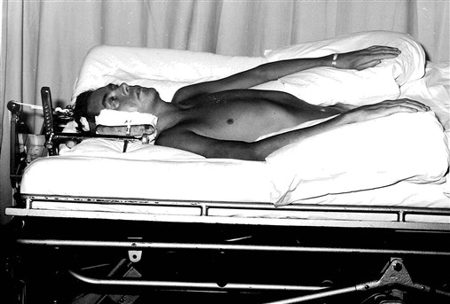 "Photo:""Patient in traction on a turning bed, which relieved pressure and changed position. Traction was used to reduce dislocation from movement; it has now largely been replaced by the surgical use of plates and pins so now everything happens much more quickly; previously you had to wait for the patient to heal in position."""